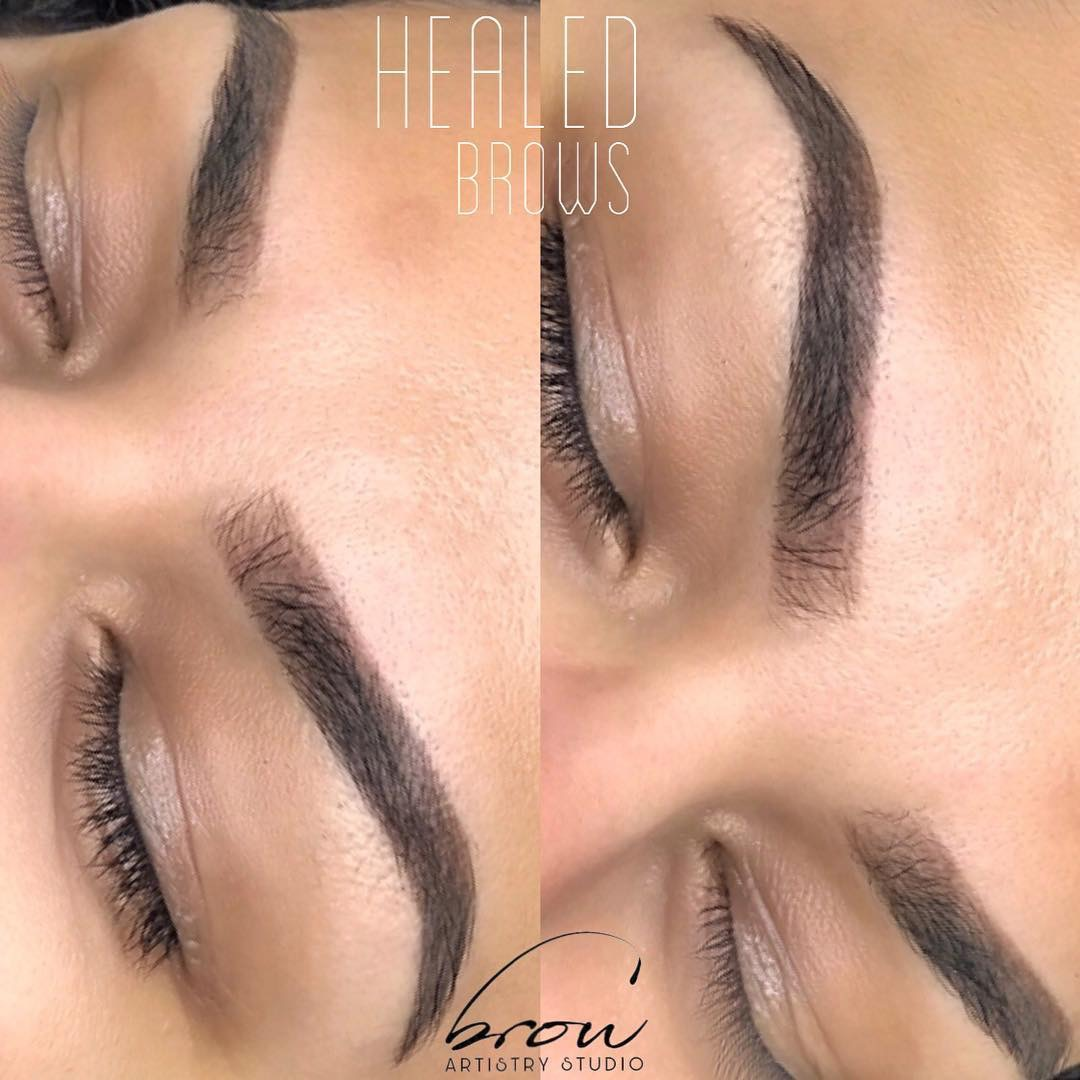 Healed eyebrows